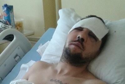 Тончев е под непрекъснато лекарско наблюдение. Неврохирурзите са категорични, че ударите са били изключително силни. Снимка: Елена Фотева