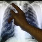 Треска, посиняване, ускорено дишане, кашлица са съмнителни за хеморагична пневмония