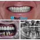 Нова усмивка за 3 дни със зъбни импланти BasalFix в дентална клиника НУРИДЕНТ