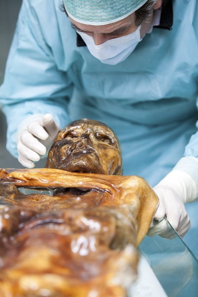 Учен от Европейската академия в Болцано, Северна Италия, изследва мумифициран труп на 5300 години, известен като Ледения човек, или Йоци, който дава сведения за непозната стомашна инфекция. СНИМКА: РОЙТЕРС
