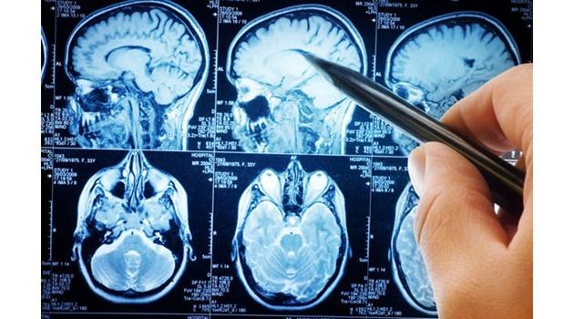 Нов алгоритъм изследва мозъка и чете мислите. Възстановява от паметта ужаса на всяко престъпление