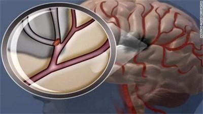 Инсултът най-често възниква, когато тромб запуши притока на кръв към мозъка.
