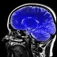 Невролози разработиха устройство, което улеснява изучаването на чужди езици