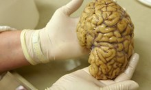 Пробив в лечението на Алцхаймер. Революционното постижение дава много надежди
