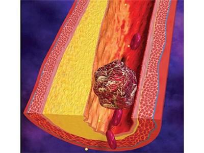 Така изглеждат съсирек в в кръвоносните съдове. Енциклопедията ни обяснява как да не стигнем до инсулт, инфаркт или сърдечна недостатъчност.