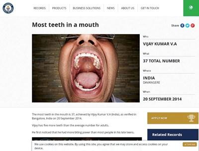 """Снимка на устата с рекордния брой зъби на сайта на Рекордите на """"Гинес"""""""