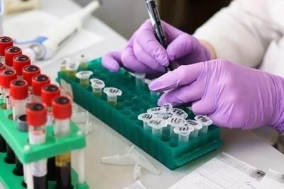 Проби за коронавирусна инфекция СНИМКА: Pixabay
