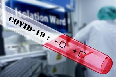Израелска болница изпробва супер бърз слюнчен тест за COVID-19. Снимка: Пиксабей