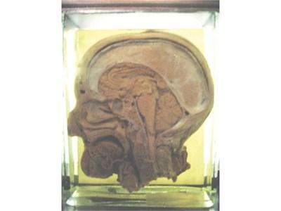 Тази глава на човек, екзекутиран във Франция преди 200 г., трябвало да докаже, че мозъкът на престъпника е по-различен.