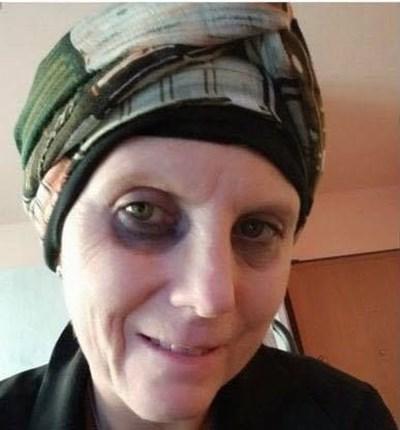 Даниела Молинари е болна от рак на гърдата и единствено от ДНК анализ на биологичната й майка може да дойде надежда за лечение. СНИМКА: ФЕЙСБУК