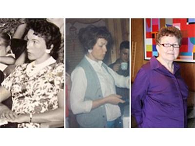 Тими преди операцията, след нея и днес, когато е на 80 г. СНИМКИ: РОЙТЕРС И АРХИВ