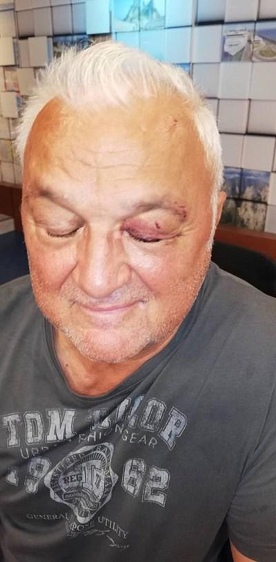 Сашо Диков с наранено око. Фотограф: Виктория Цветкова СНИМКА: Личен архив