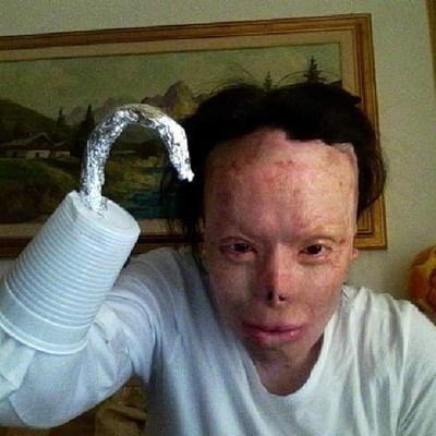"""Племенникът на Валентина  """"конструира"""" протеза на ампутираната ръка с пластмасова чашка. СНИМКИ: ИНСТАГРАМ"""