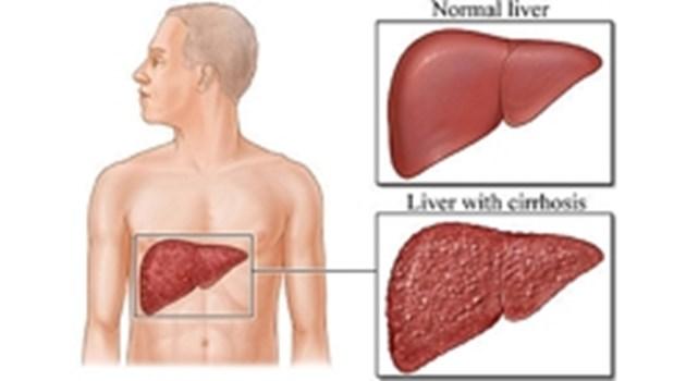 Какво се случва, когато черният дроб и жлъчката не функционират правилно