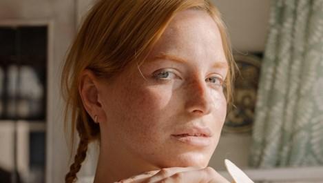 Имате ли суха кожа – симптоми и решения