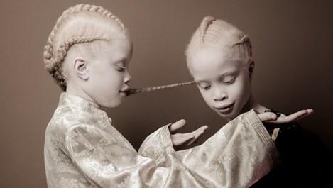 Близначки албиноси завладяха модата с уникалната си красота (галерия)