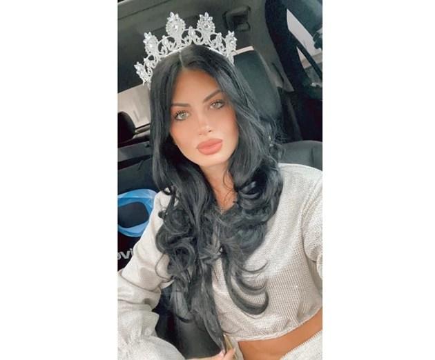 Новата Мис България: Снимките с устните ми са абсурдни, слагам си хиалурон от 5 г.