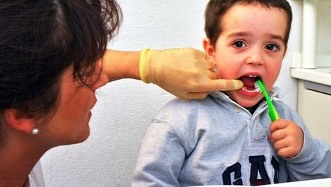Запечатването на зъбите намалява със 70% кариесите