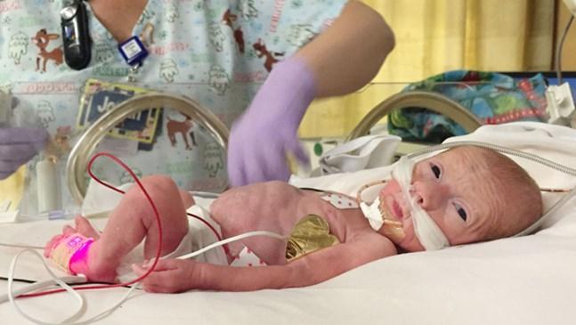 Борбата за живот на едно бебе, родено в 25 г.с. (СНИМКИ)