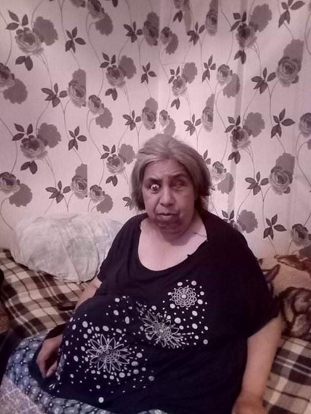Сляпата Спаска се бори с тумор