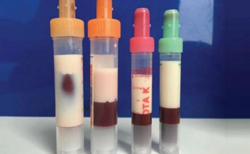 Кръвни проби на кьолнския пациент в хода на прочистването му от мазнини
