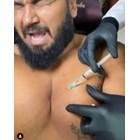 Азис с инжекции за косми