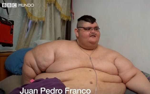 Бившият най-дебел мъж в света отслабна с 330 кг. (Видео)