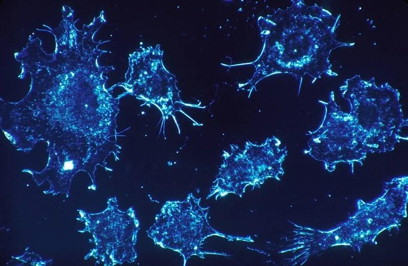 Ракови клетки Снимка: Пиксабей
