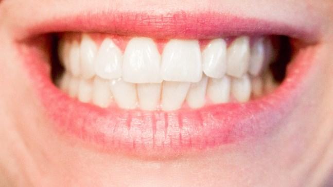 Какво се случва със зъбите през бременността