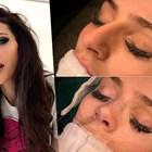 Ето как оперират носа на Преслава!