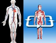 7 признака за запушена артерия