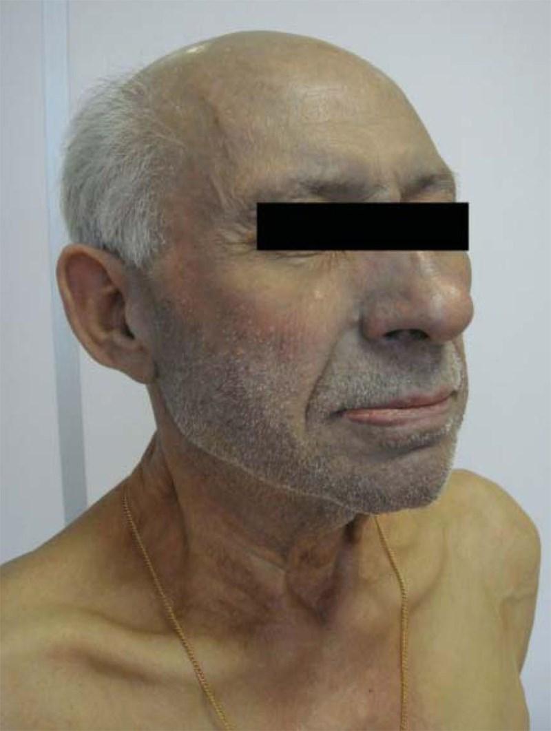 Аргирията е посиняване на кожата по откритите части