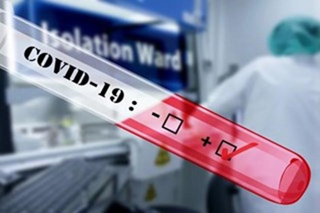 159 са новите случаи на COVID-19 у нас за 24 часа, 8 починаха