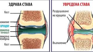 Болка и оток в ставите? Нов продукт с доказателства за 75% подобрение