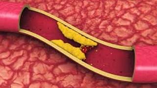 Холестеролът - как да го превърнем в наш приятел