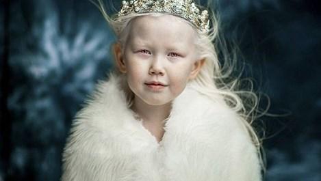 9-годишен модел албинос завладя социалните мрежи (галерия)