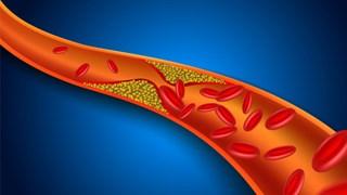 Билкова формула срещу тромбози