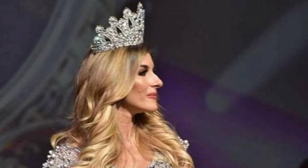Мис България: Обидите за носа ми не ме стигат!