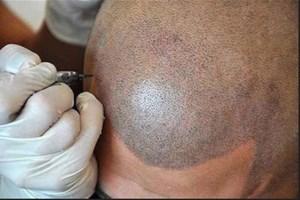 Татуирането на коса може да спести много психични проблеми на мъже, които свързват оплешивяването със загуба на своята мъжественост.