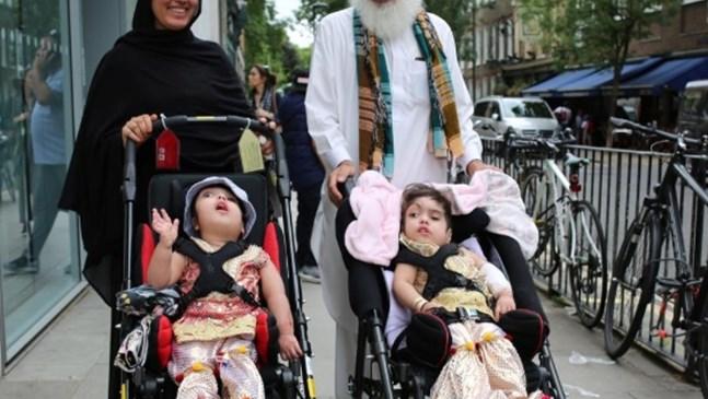 Британски лекари обявиха, че се разделили близначета, свързани в главите