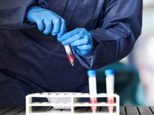 Изписаха двама излекувани от коронавирус в Бургас