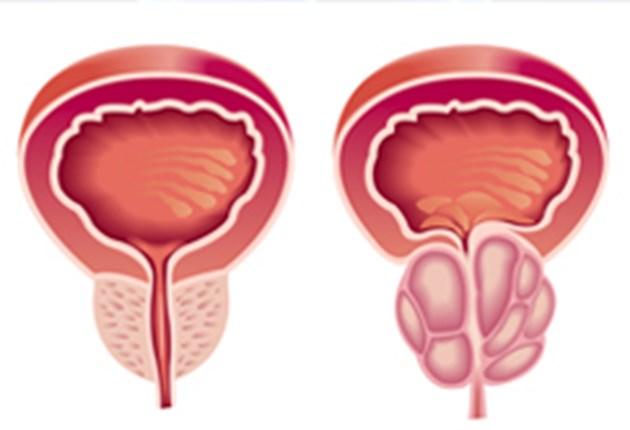 Най-честите грешки на мъжете с увеличена простата