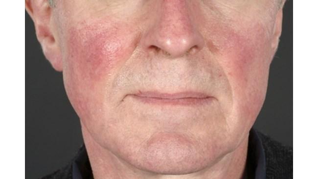 Псориазис и себореен дерматит: как да направим разлика   Ducray