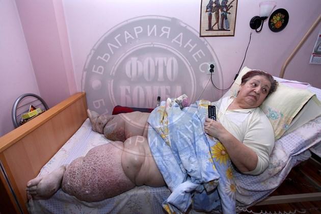Мария, жената със слонска болест:Чакам да умра!